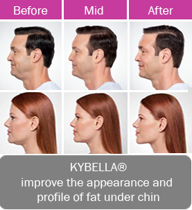 Kybella, improve the appearance and profile of fat under the chin.