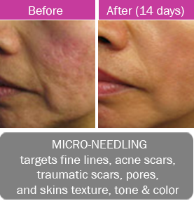 Micro-Needling, targets fine lines, acne scars, traumatic scars, pores, and skins texture, tone and color.