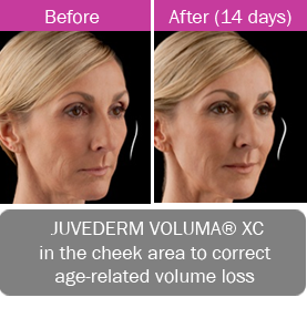 Juvederm Voluma XC, in the cheek area to correct age-related volume loss.